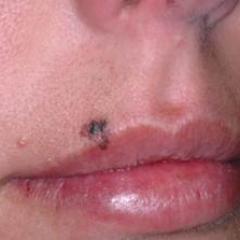 Mole on lip